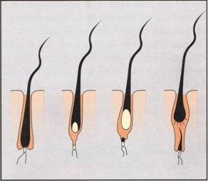 Haar-trimmen